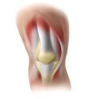 ジャンパー膝のイラスト画像