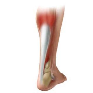 アキレス腱炎のイラスト画像